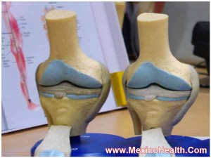 knee-replacement-mexico